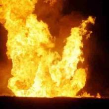 Healing Burns at a Distance - Fire Burn Doctor